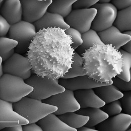 Photo by Zeiss Microscopy